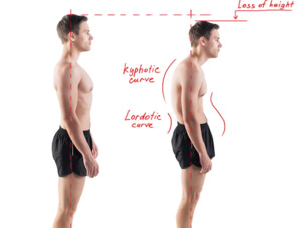 Жжение под левой лопаткой сзади со спины причины сильной боли