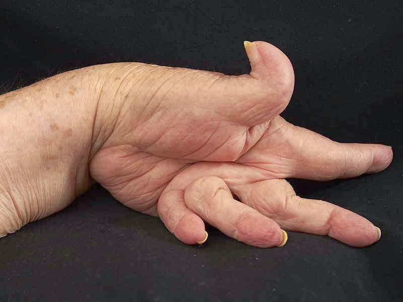 Артрит сосудов нижних конечностей симптомы и лечение
