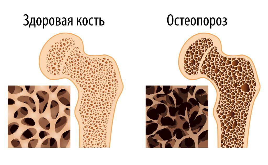 Кости при остеопорозе картинки