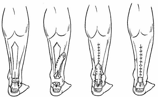 Реабилитация после разрыва ахиллова сухожилия - Форум