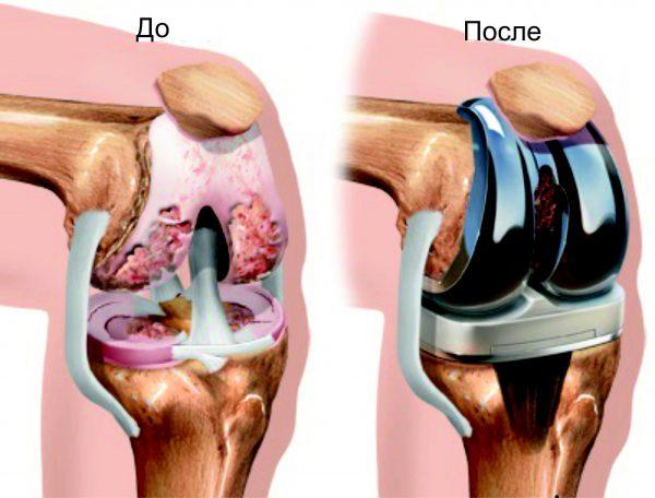 Протез коленного сустава
