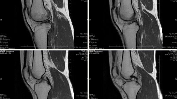 Так выглядит МРТ коленного сустава
