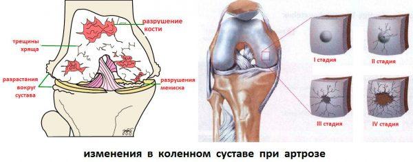 Изменения коленного сустава при артрозе