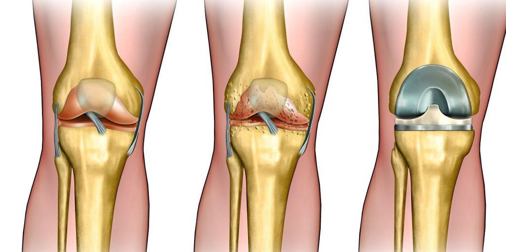 Пример здорового колена, больного колена и эндопротезирования