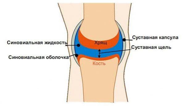 Скопление синовиальной жидкости в коленном суставе
