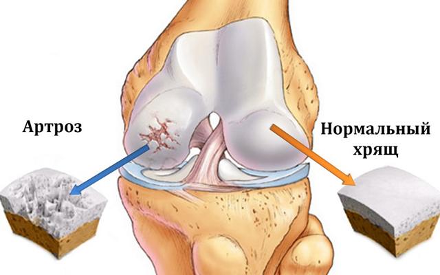Разрушенный хрящ коленного сустава