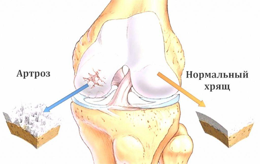 Чем опасен артроз коленного сустава 3 степени