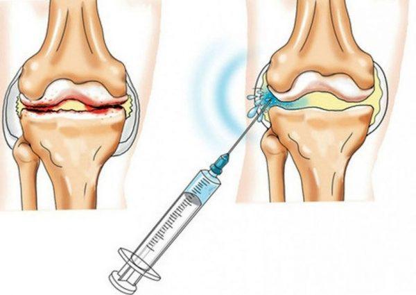 Так происходит инъекция внутрь сустава
