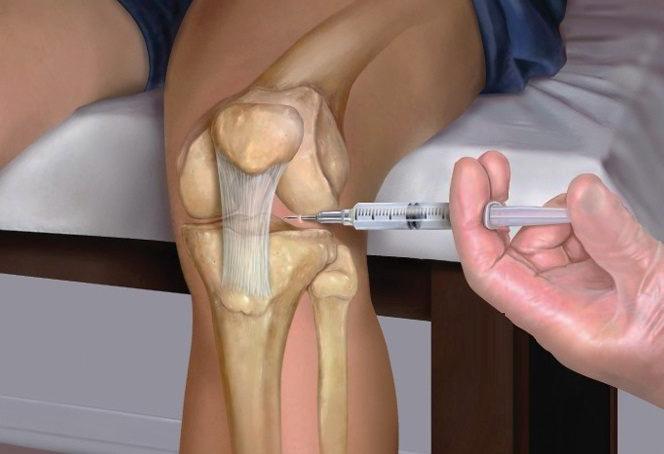 Уколы в коленные суставы парартроз коленного сустава