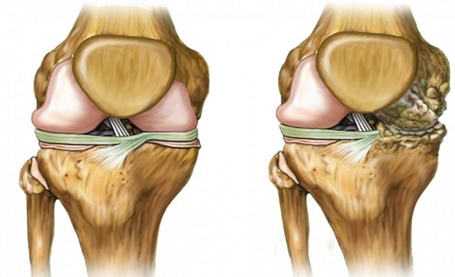 Гонатроз коленного сустава