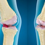 Гимнастика для конечностей при остеоартроз