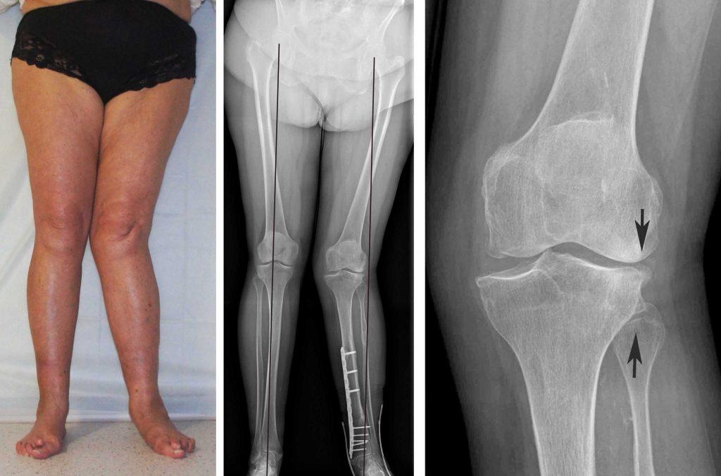 Деформация ног при артрозе коленного сустава