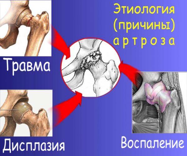 Причины артроза
