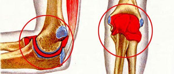 Кровоизлияние в коленный сустав