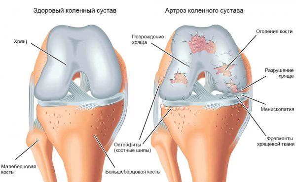 Наглядный пример здорового сустава и сустава больного артрозом