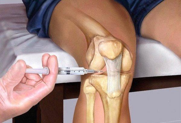 Инъекция в коленный сустав
