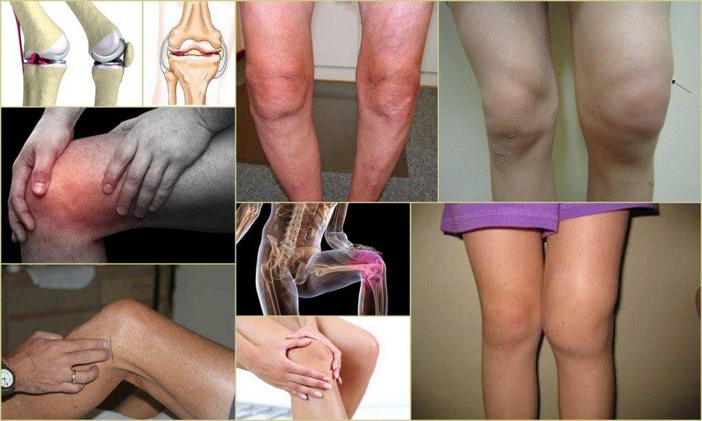 Внешние проявления остеоартроза коленного сустава