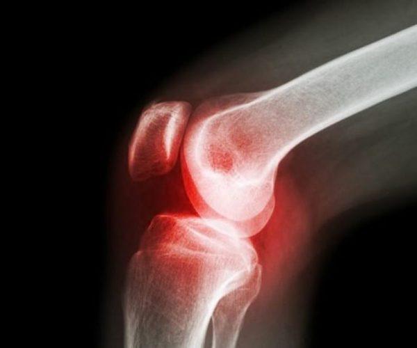 Больно коленный сустав