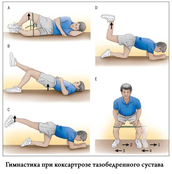 Лечебные упражнения дома при коксартрозе