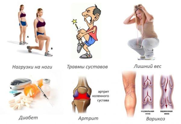 Причины артрита колена