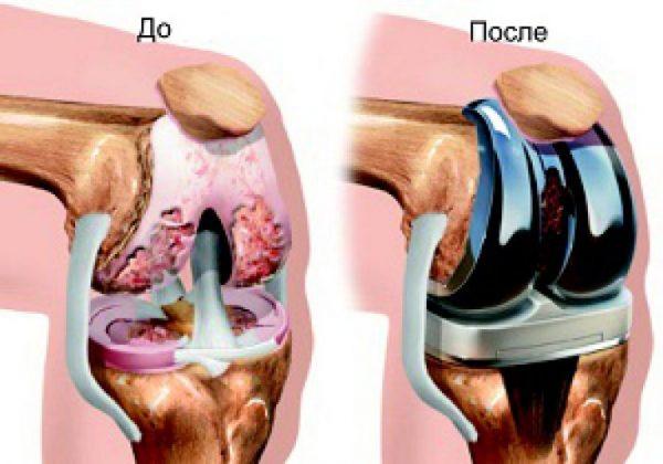 Протезирование коленного сустава