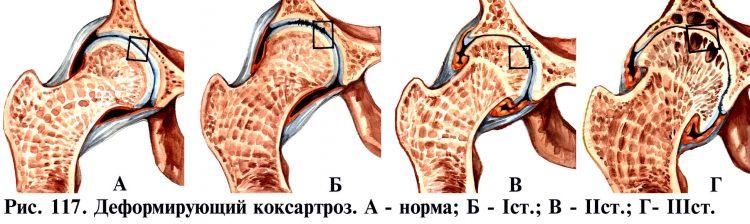 Стадии деформирующего коксартроза