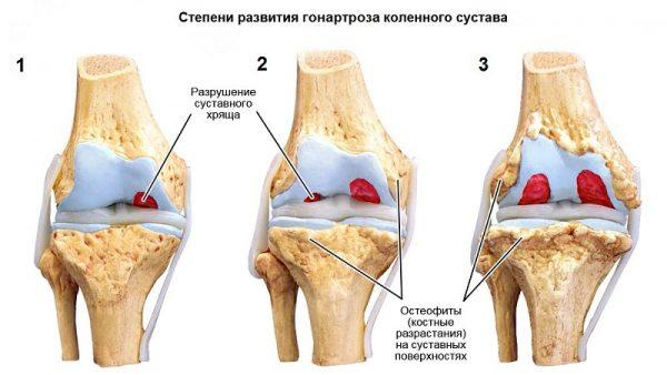 Лечение коксартроза тазобедренного сустава 3 степени без операции