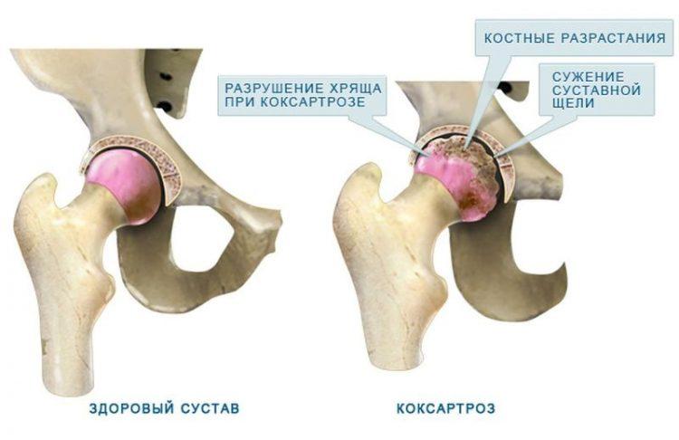 Здоровый сустав и разрушенный коксартрозом
