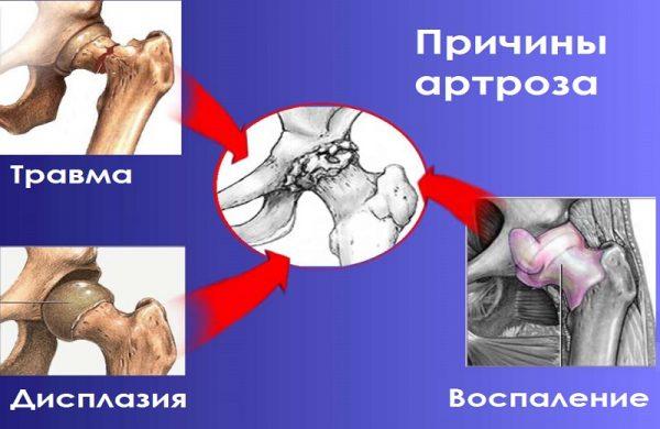 Причины развития артроза