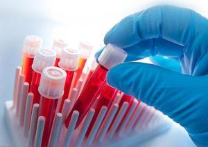 Пациенту необходимо сдать кровь на анализ