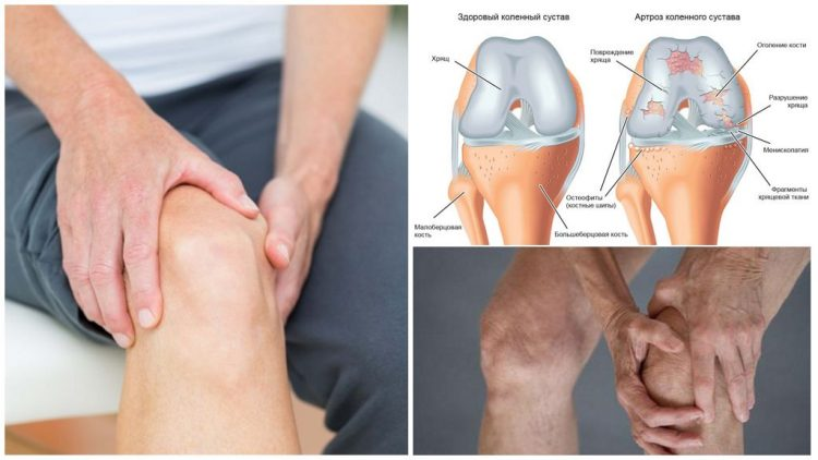 Изменения в коленном суставе приартрозе