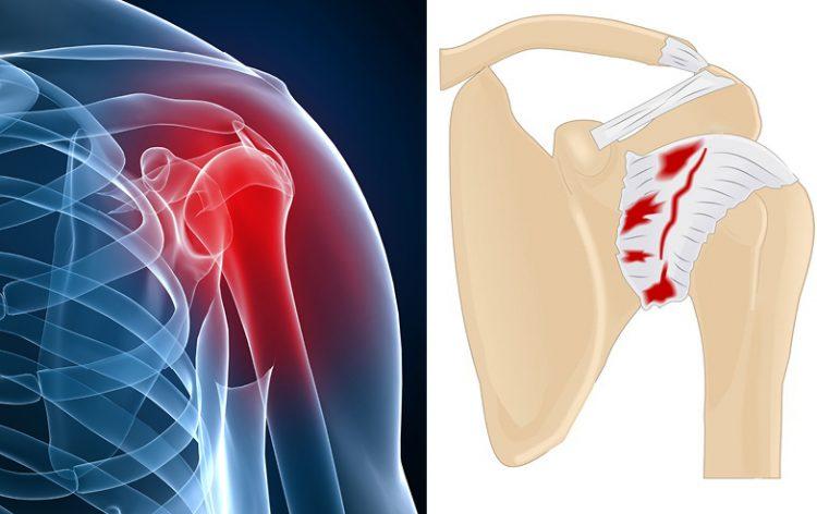 Внешний вид пораженного плечевого сустава
