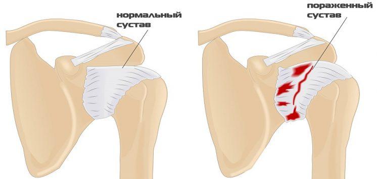 Нормальный и пораженный сустав