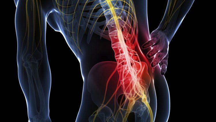 Боли в спине доставляют людям любого возраста максимум неудобств