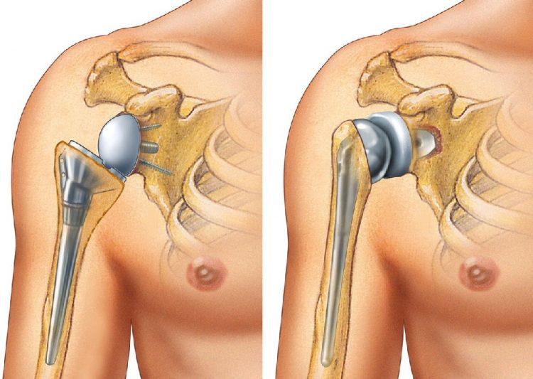 Плечевой сустав с протезом