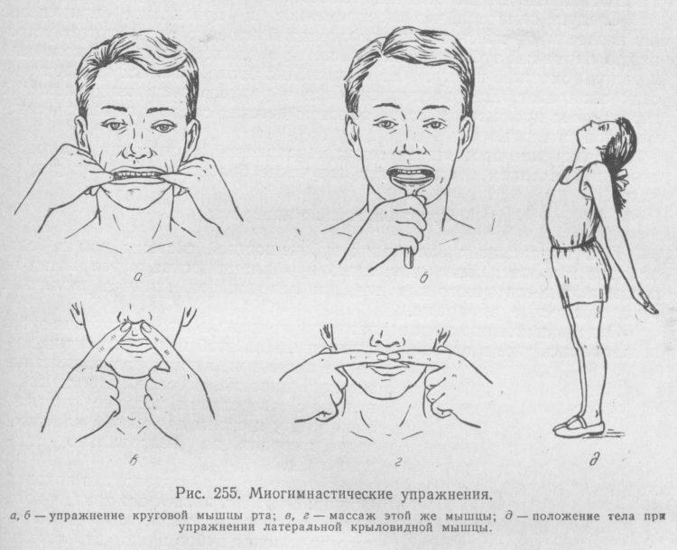Комплекс упражнений миогимнастики