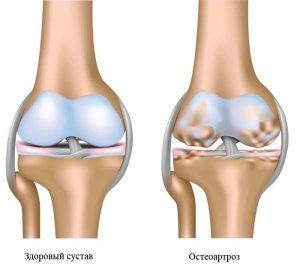 Заболевание остеоартроз чаще всего встречается у женщин