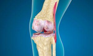 Пораженный коленный сустав остеоартрозом