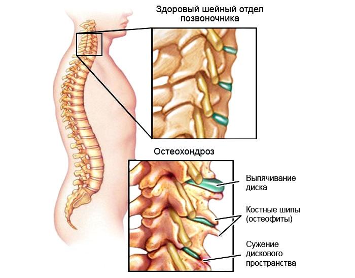 Здоровый шейный отдел и остеохондроз