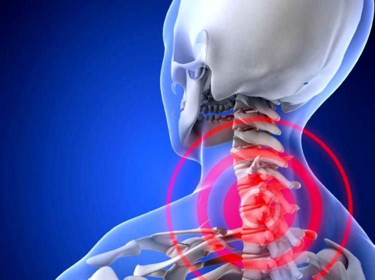 Повреждение позвоночника при остеохондрозе