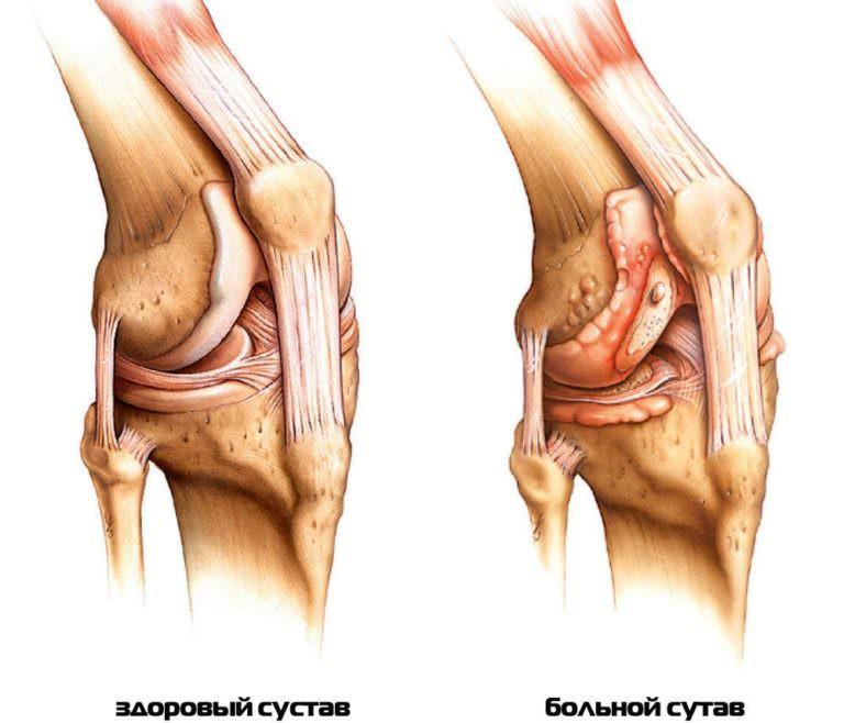 Воспаление крупных суставов