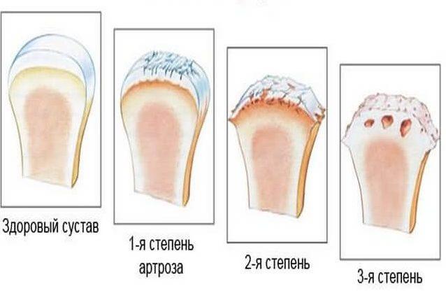 Здоровый сустав и поврежденные