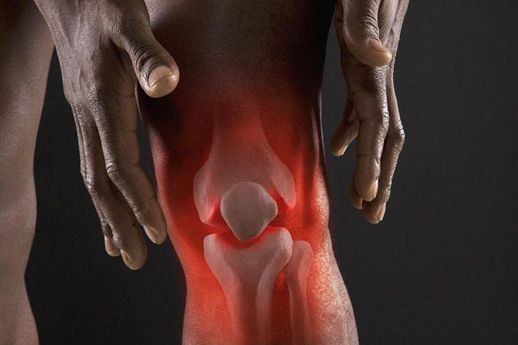 Реактивный артрит может протекать в нескольких формах