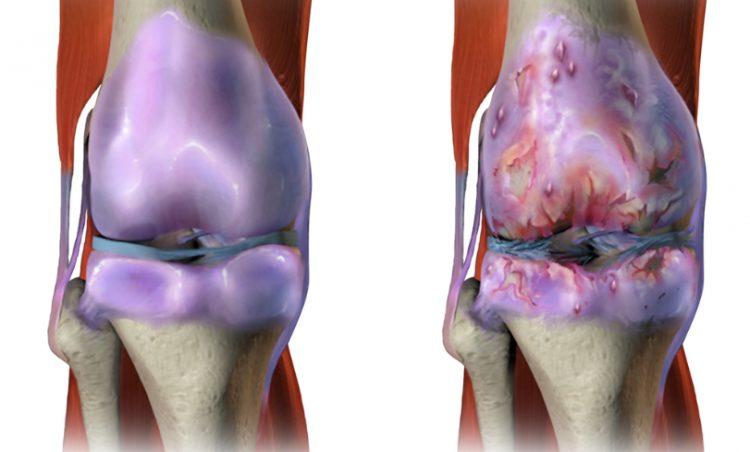 При патологии сустав меняет свой внешний вид