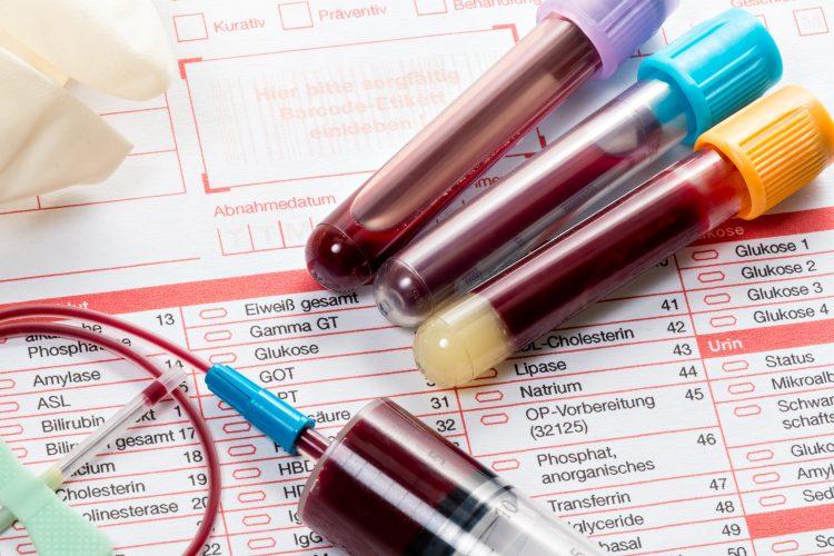 Пациенту обязательно нужно сдать кровь на анализ