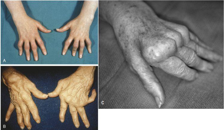 Деформирующий артроз пальцев рук