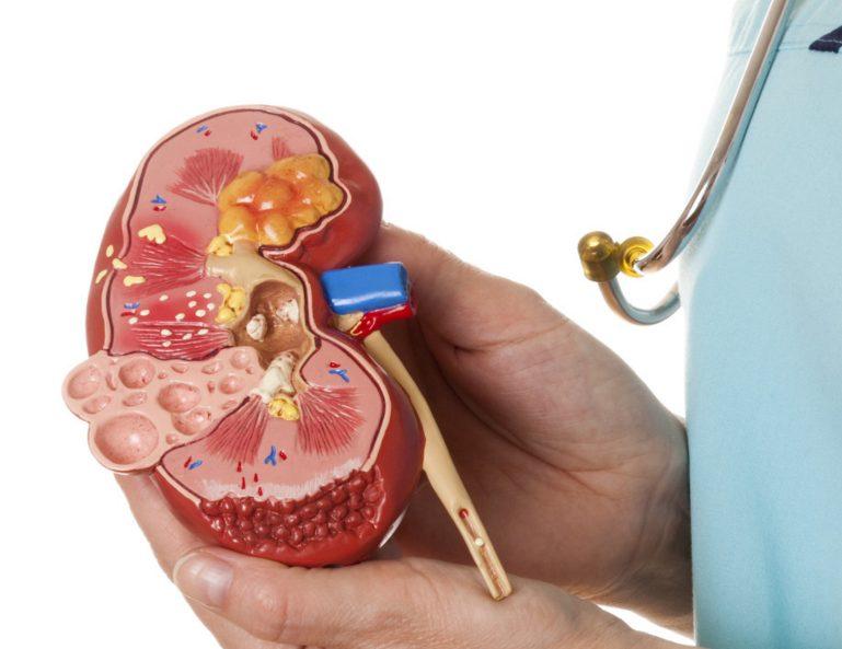 При данном недуге могут поражаться другие органы и системы человеческого организма