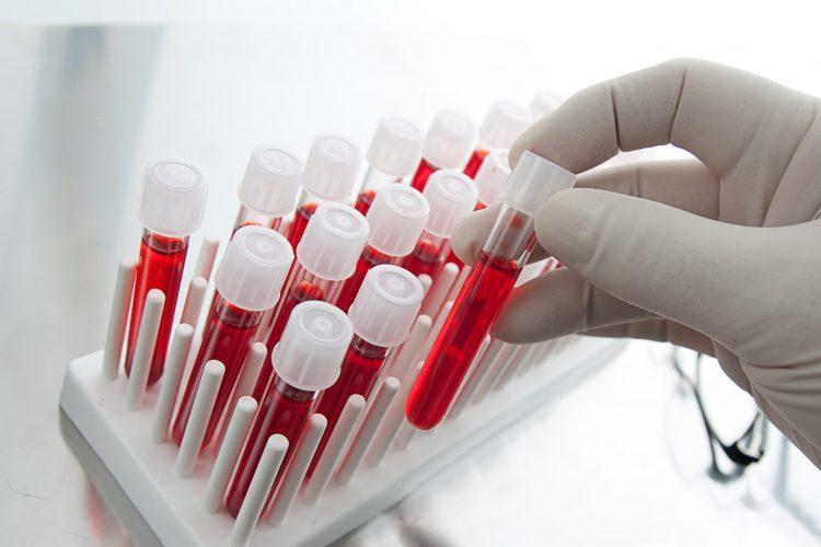 Больному обязательно следует сдать кровь на анализ