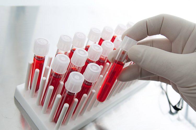 Пациенту необходимо сдать анализ крови