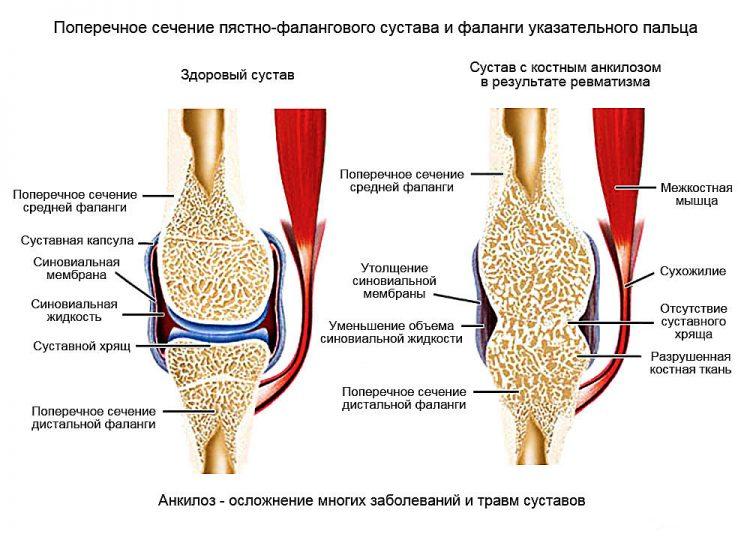 Последствие заболевания - анкилоз